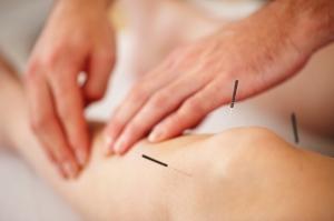 newhosp-acupuntura-tratamento